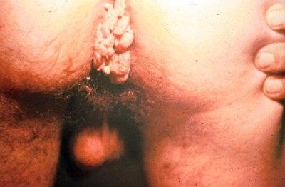 What do anal warts look like